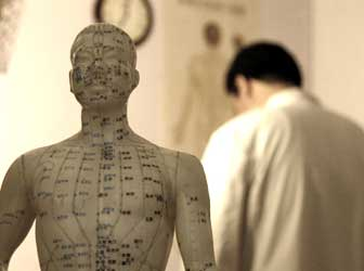 statuette acupuncture